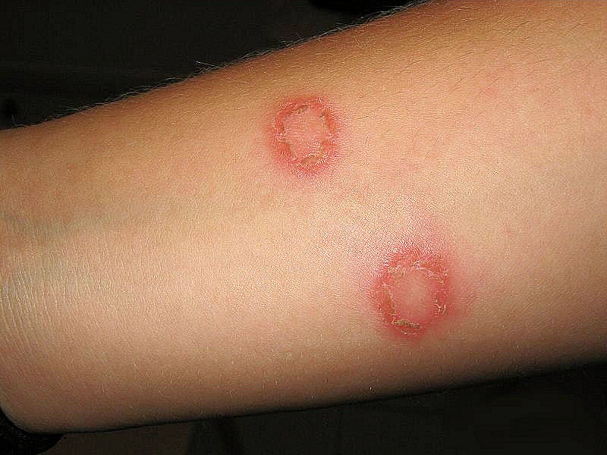 Appearance of ringworm