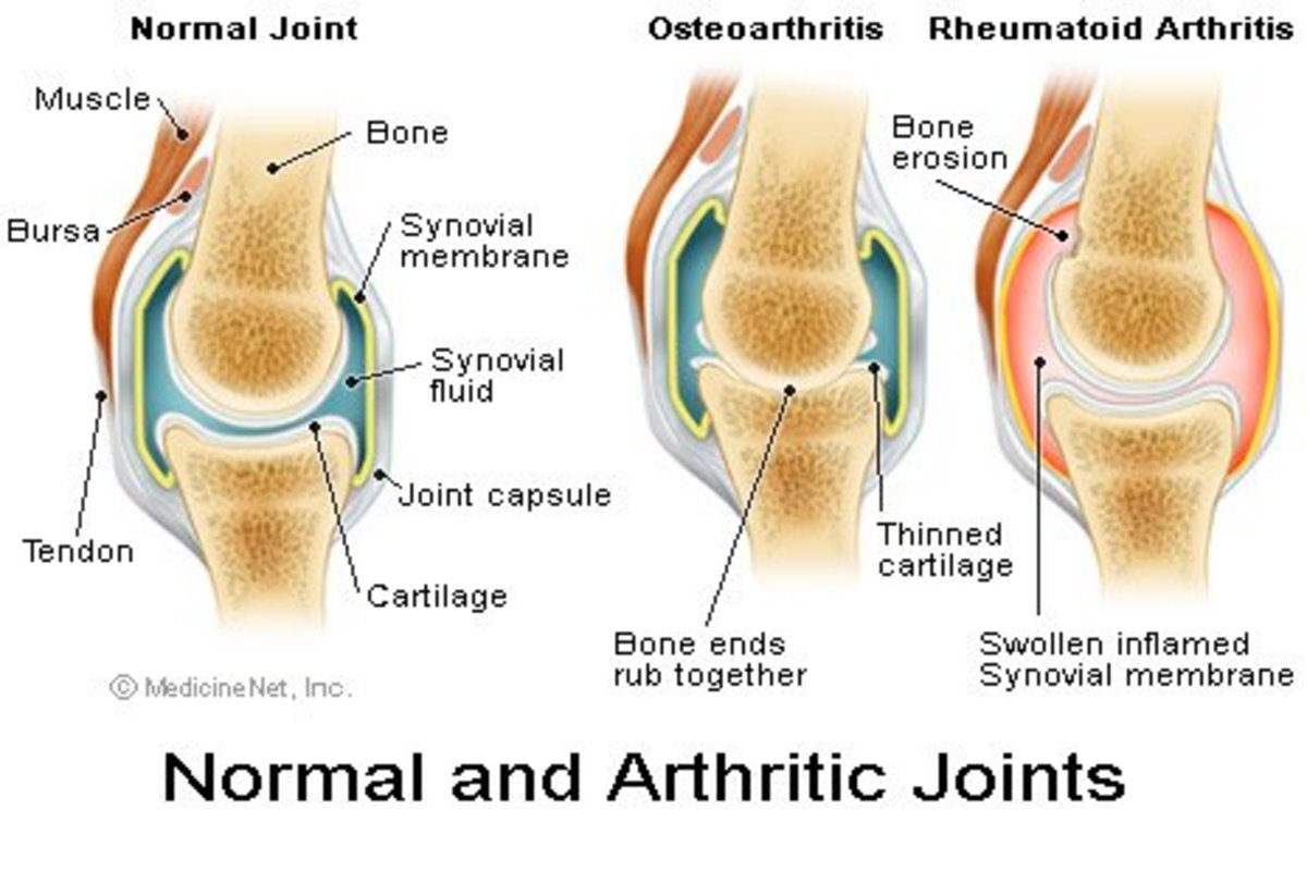natural-help-for-joints