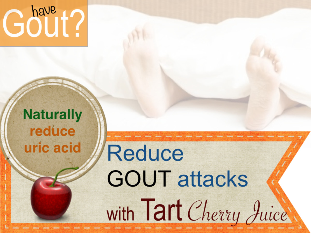 Antioxidant rich tart cherry juice and tart cherries help lower uric acid and prevent attacks. - University of Maryland Medical Center