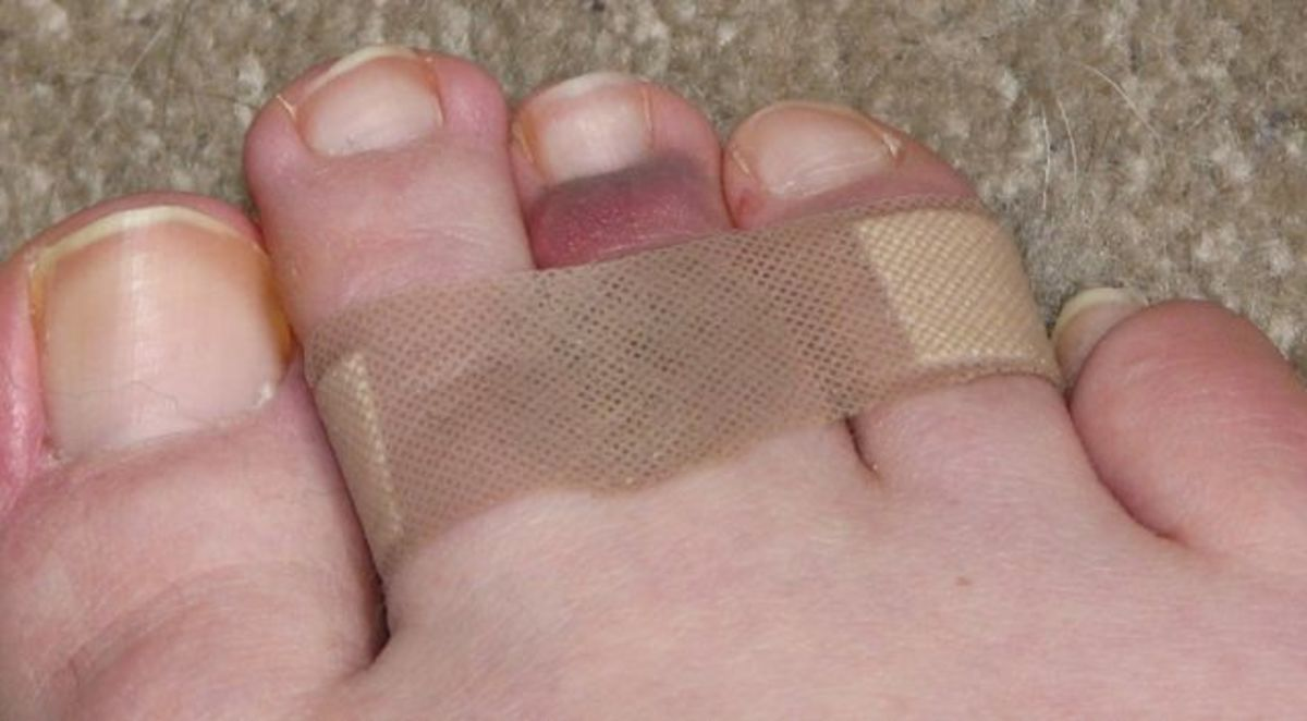 I dislocated my middle toe.