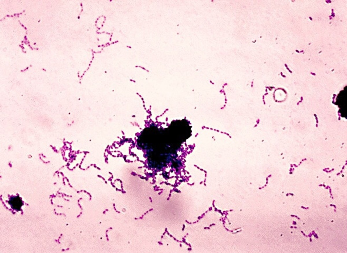This is a stained slide of Streptococcus mutans, the main cause of tooth decay. The bacterium consists of single cells, but the cells may join to form chains.
