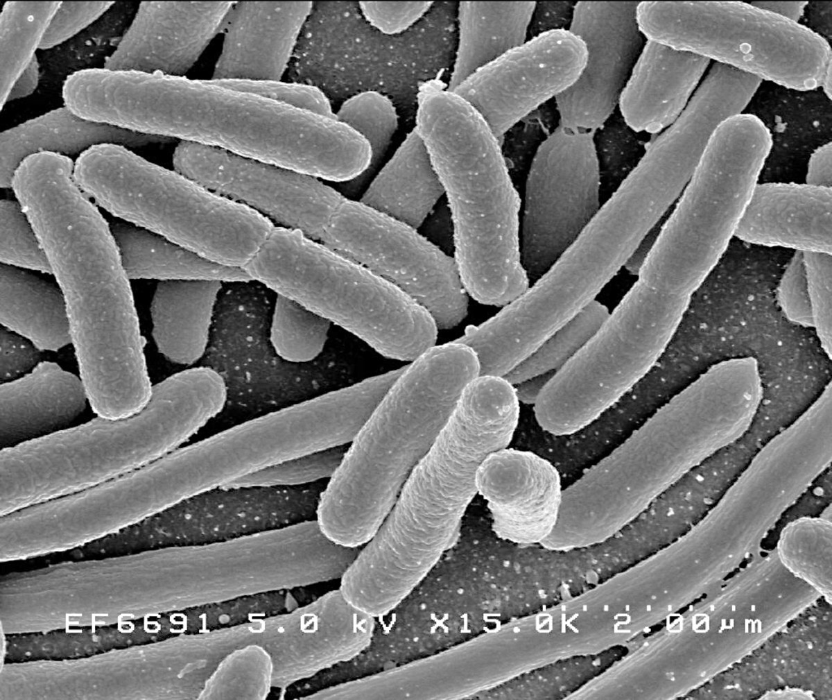 Escherichia coli, or E. coli, lives in our large intestine and is helpful. Some strains of E. coli are harmful, however.