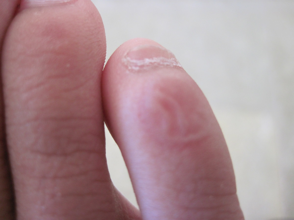 The blister on my right pinky toe two days after I caused it. It looked a lot worse a couple of days ago, tiny balloon bad.I didn't do anything to it; it healed by itself.