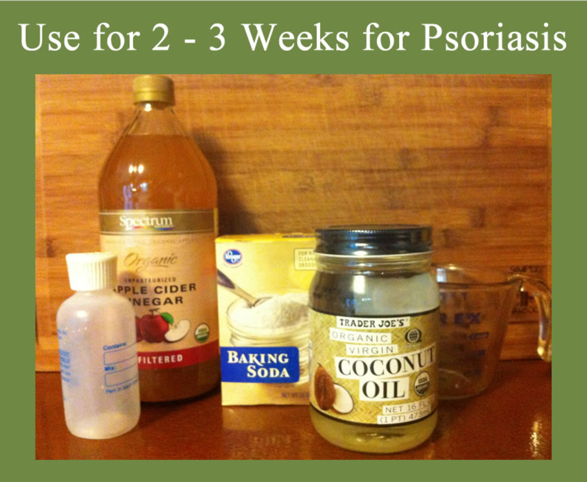 best oil for scalp psoriasis