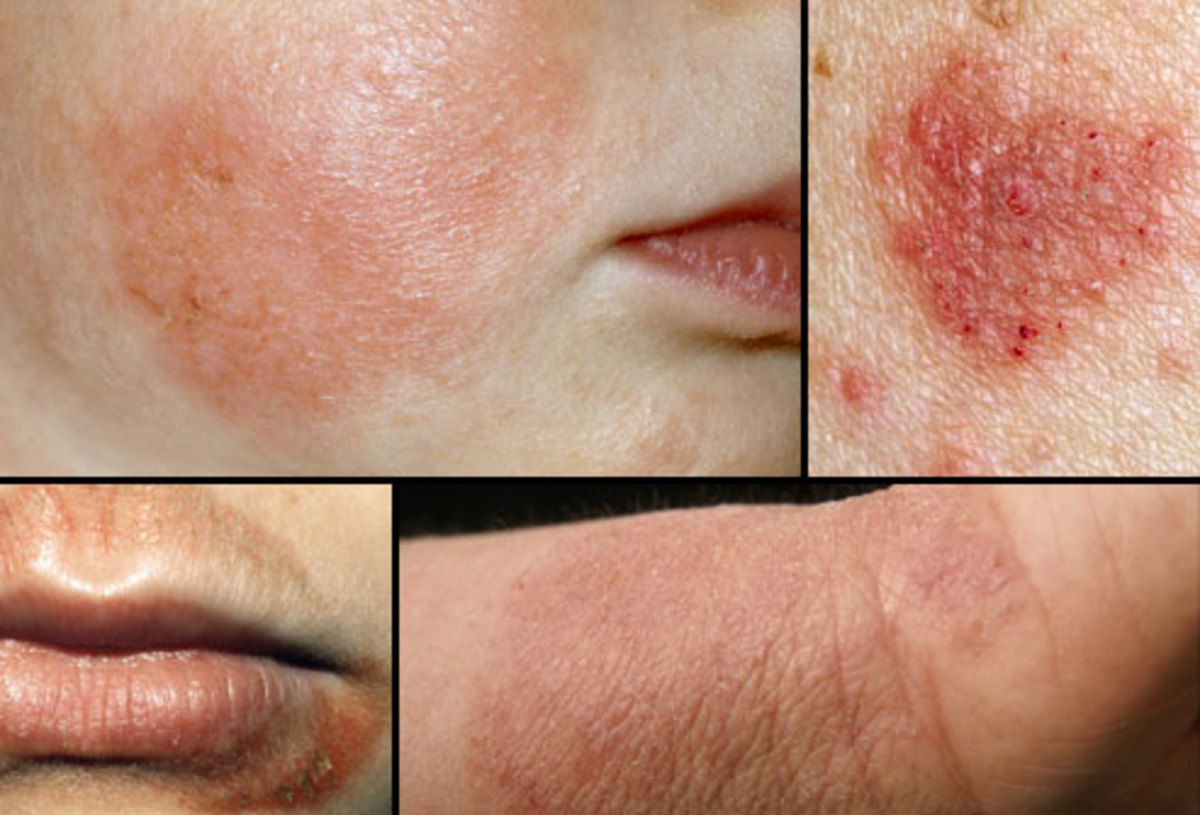 Eczema presents as red, itchy, scaly legions of the skin.