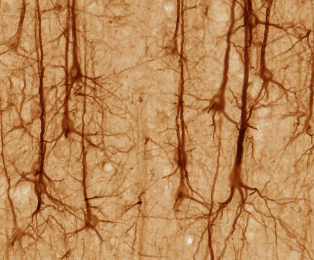 These are brain neurons. Notice all the space between them. It's all flesh mixed with water. The water is necessary to separate the dendrons a bit, so they're not always charging us to action. (Hmmm. Wonder if that's a cause of ADHD?)