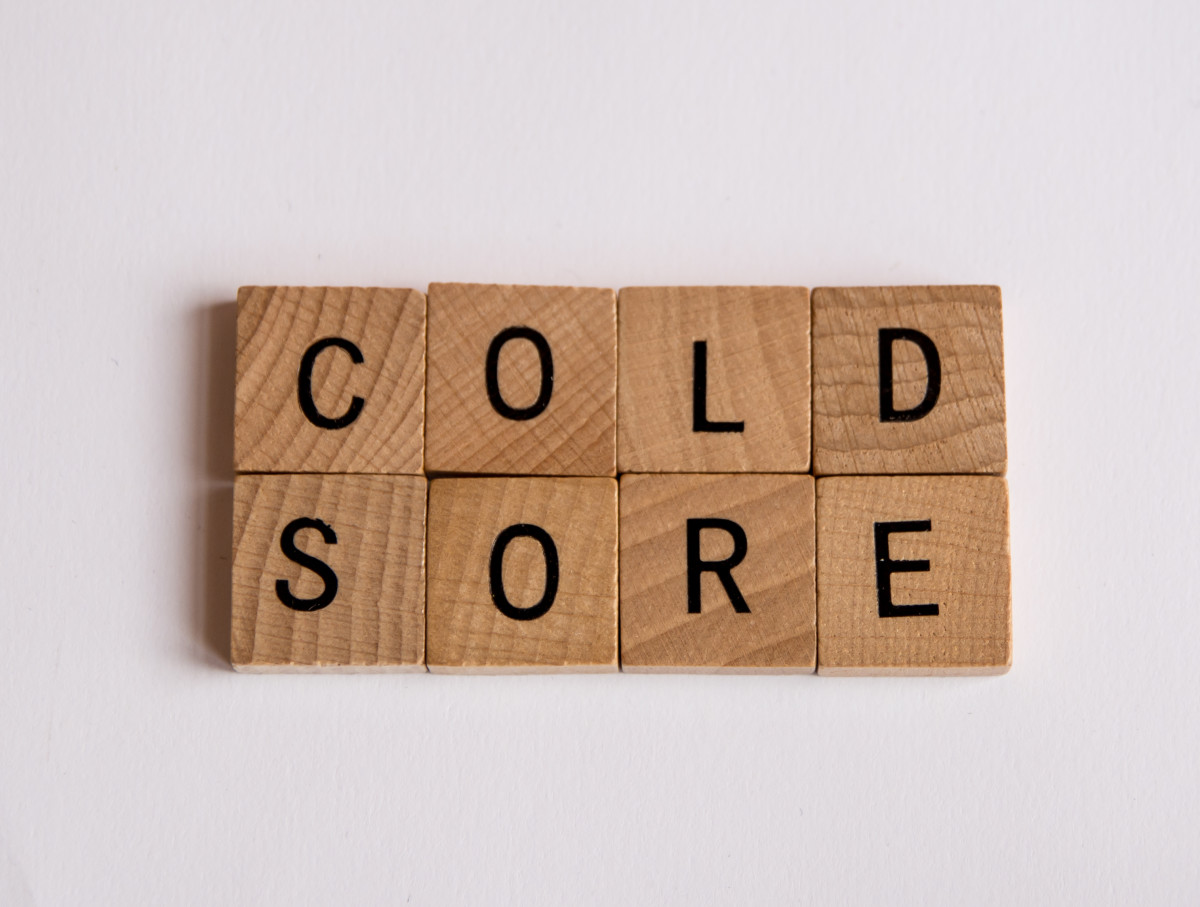 Anyone can get a cold sore!