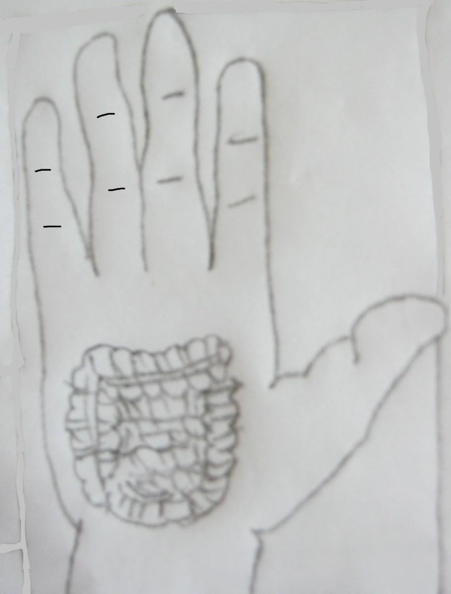 figure 10 B