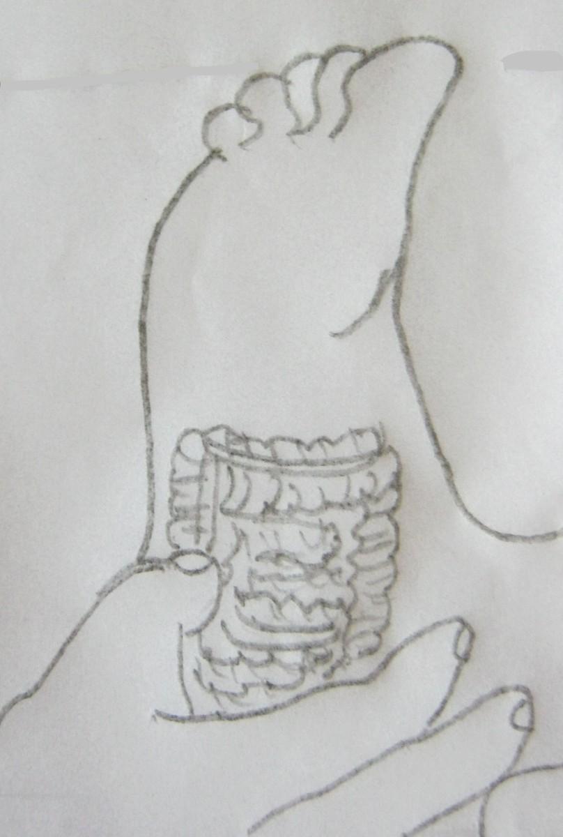 figure 10 A