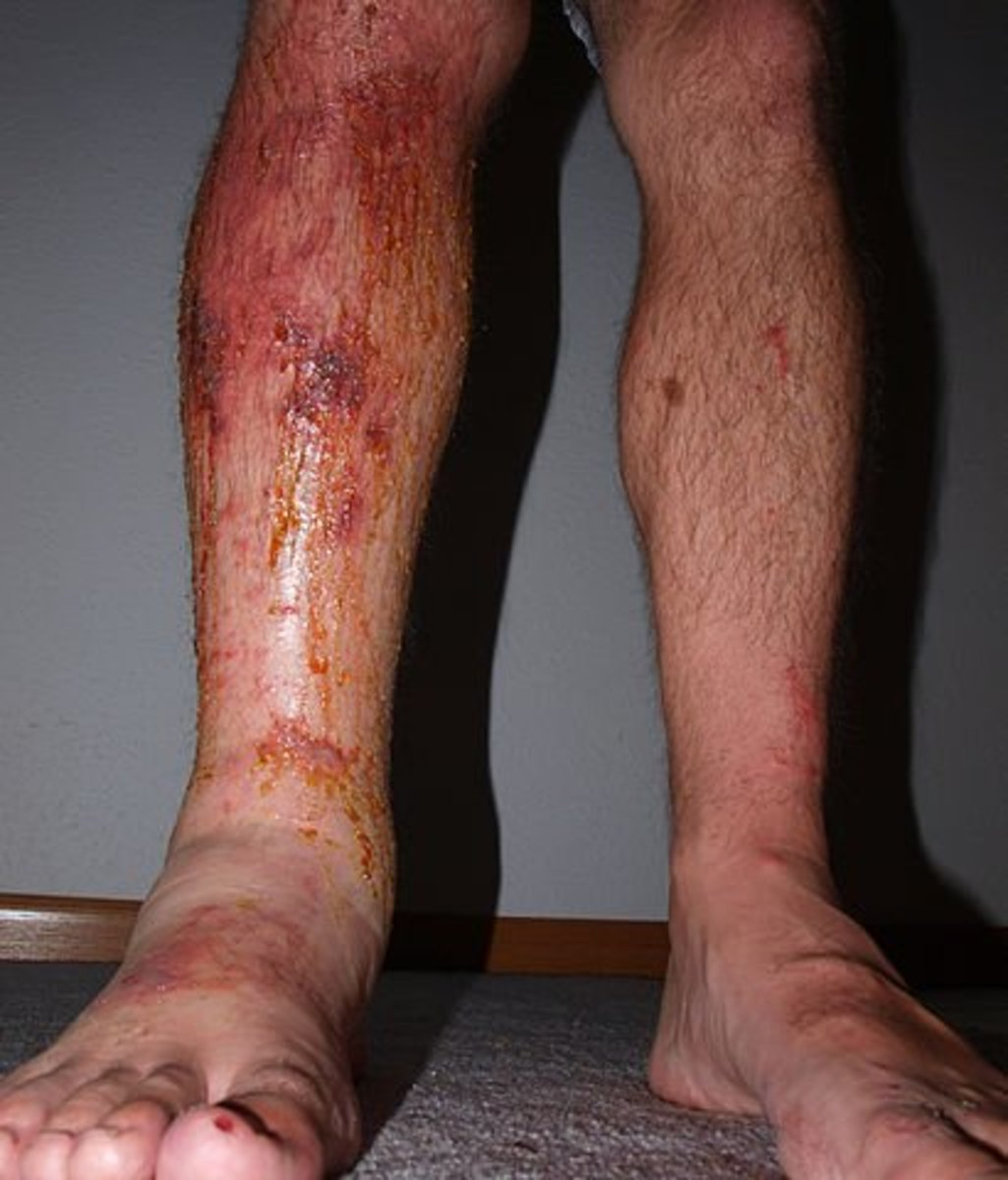 Unless you have had poison ivy rash, you do not know the horror of this painful affliction.