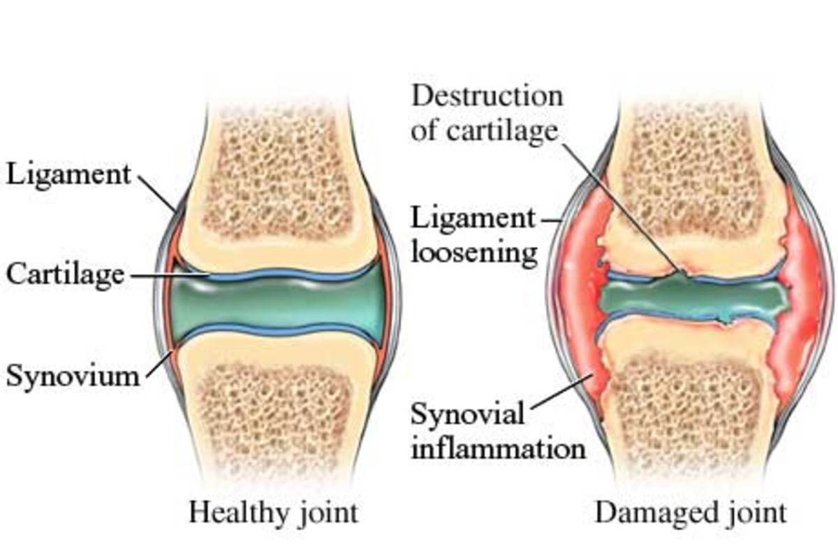 Arthritic Knees