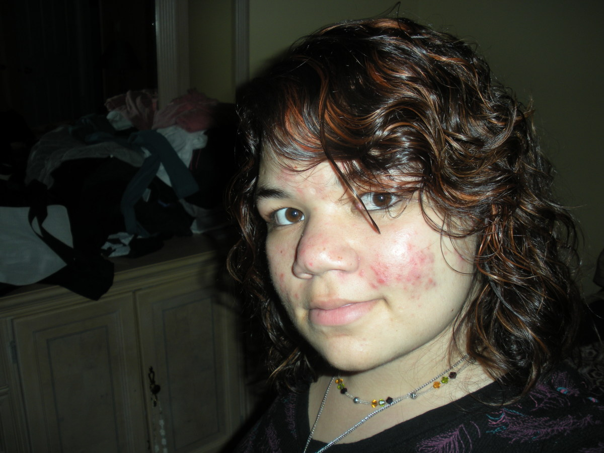 These photos are the worst that I can find. My Rosacea was actually twice as bad when I started Prosacea, I am just very camera shy during bad flares.