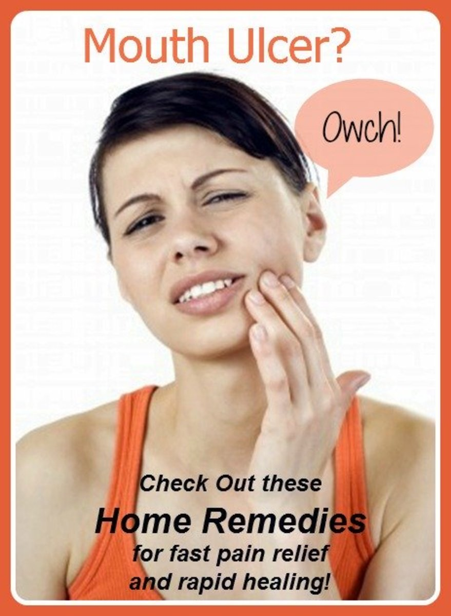 Home Remedies For Mouth Ulcers Healdove