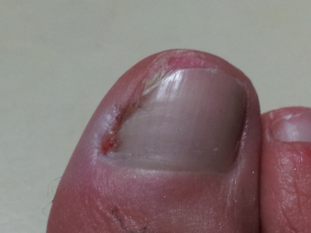 After applying the oil religiously for 3 months, the infected part of the nail fell off.