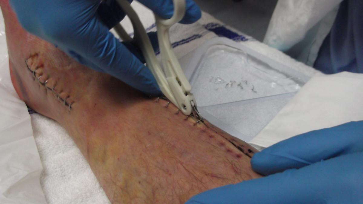 Doctor removing the surgical staples from my husband's leg before I applied a comfrey poultice. Look at the smaller ankle scar before you look at the 'after' photo.
