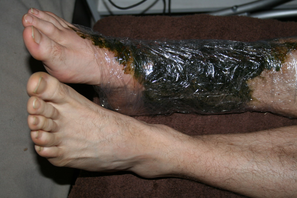 I wrap his ankle in kitchen wrap to keep the comfrey in place and collect the drips. This is a good time to read a book, write a letter or play computer games. If you grow comfrey as I do, you can use lots in each poultice.