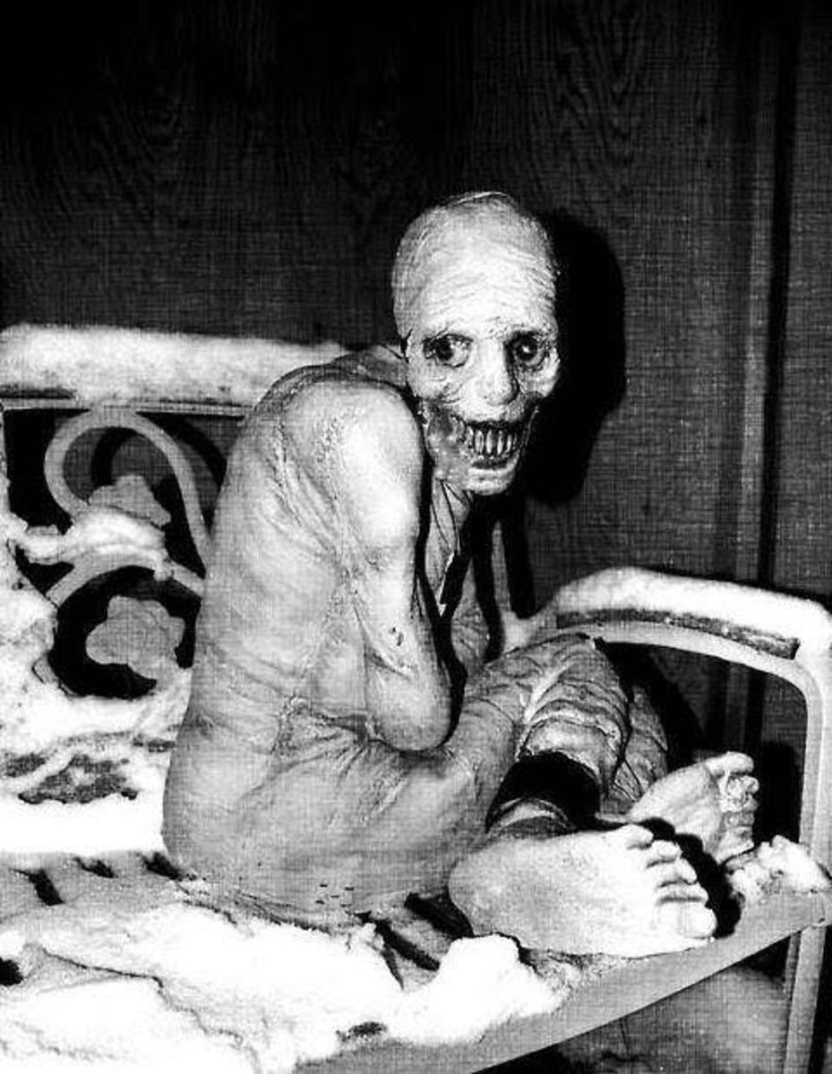 One of the participants in the sleep experiment