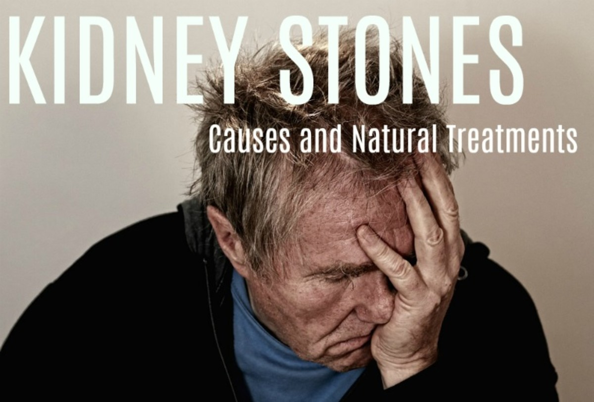 What Causes Kidney Stones and How to Avoid Them