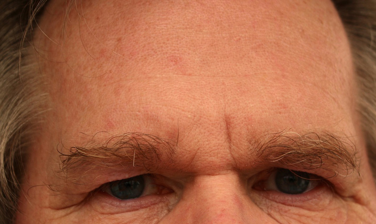 10 Explanations for the Massive Pimple on Your Head