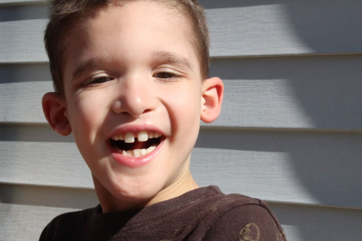 Rylan has Mowat-Wilson Syndrome and will need supervision the rest of his life.