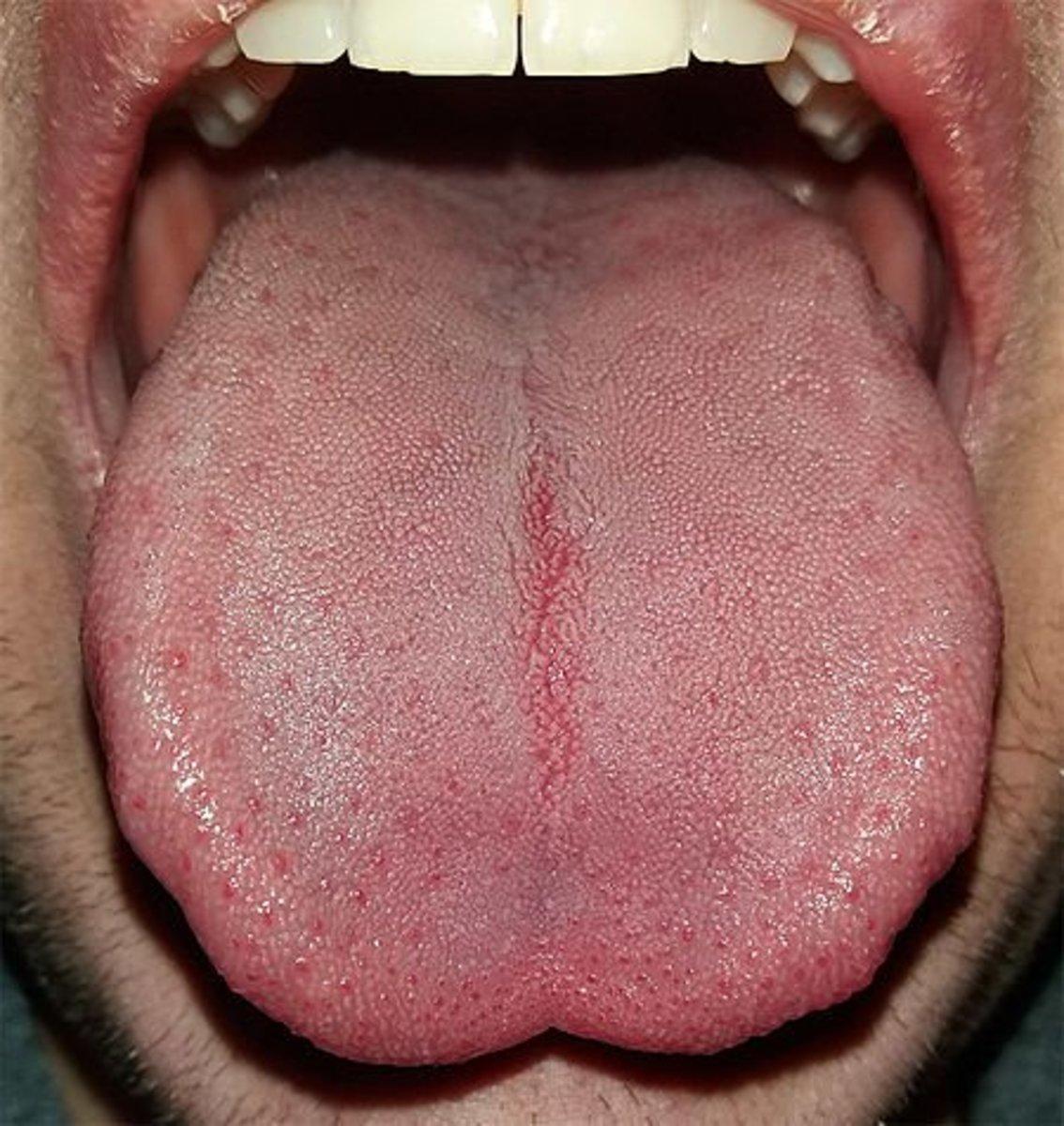 Unhealthy Healthy Tongue – Meta Morphoz