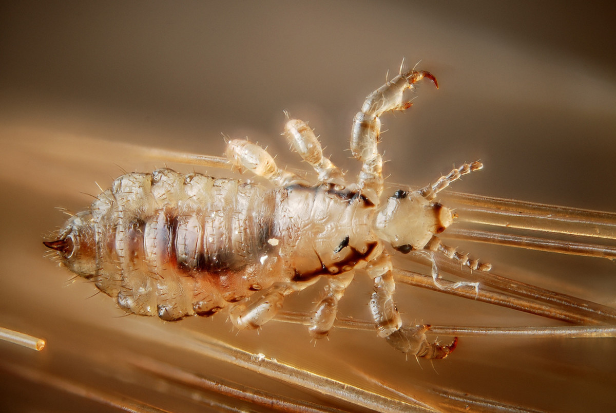 How to Prevent Lice in Your Home This School Year