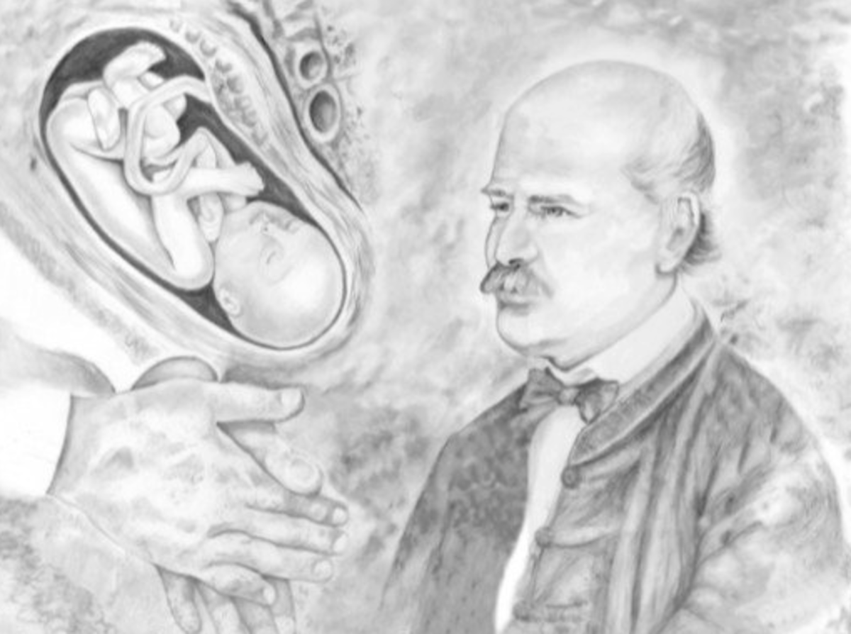 Ignaz Semmelweis: The Savior of Mothers