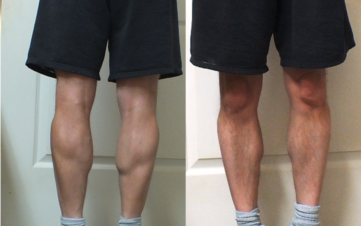 Leg muscles after biking to the beach 4 times.