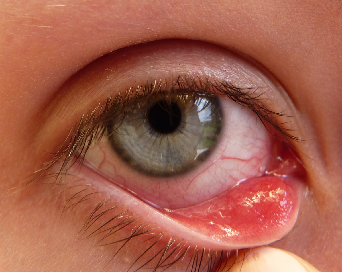 A chalazion is a slow-growing infection of the oil-producing glands in the eyelid. Chalazions look like styes but they are not painful.