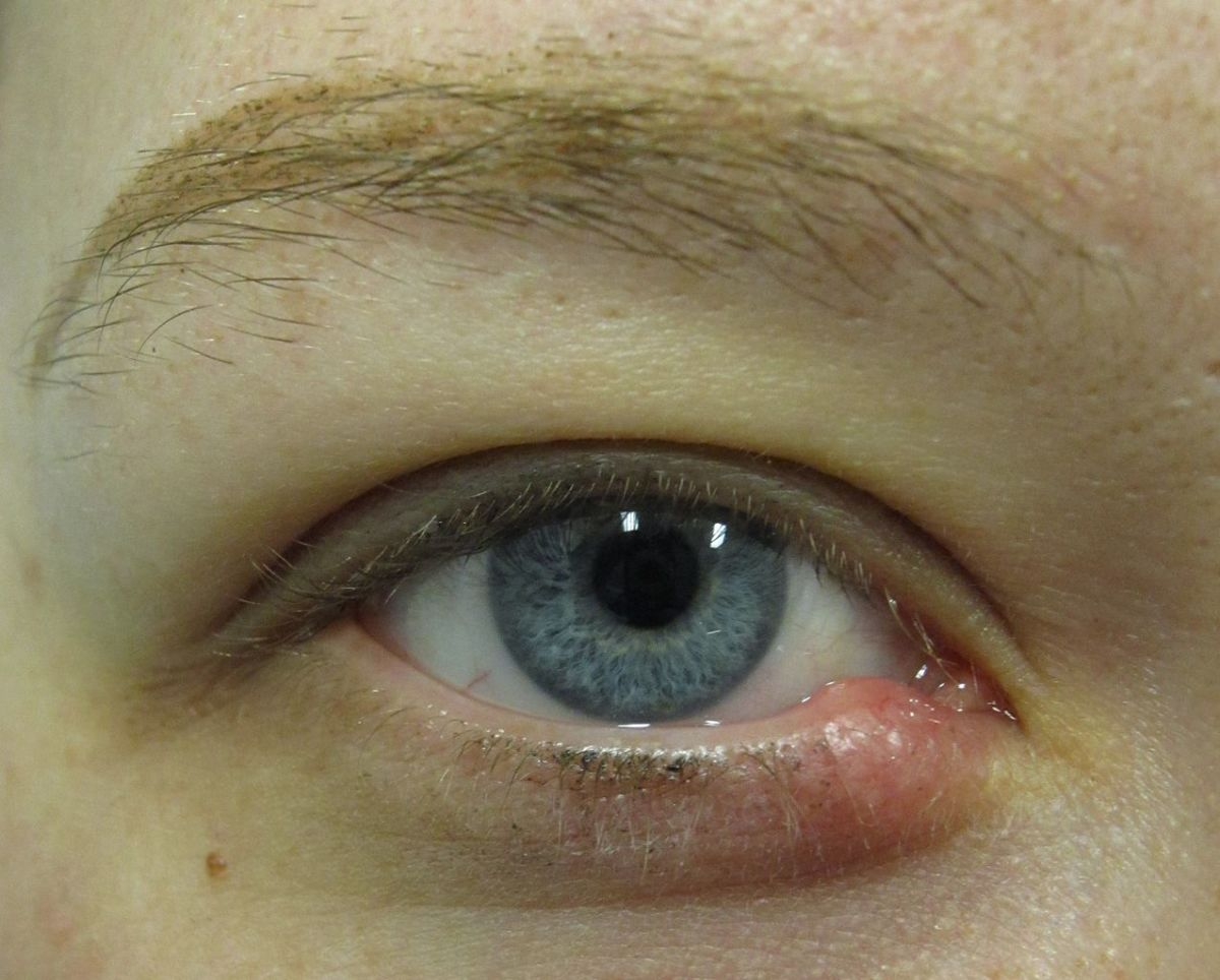 An external stye on the lower eyelid.
