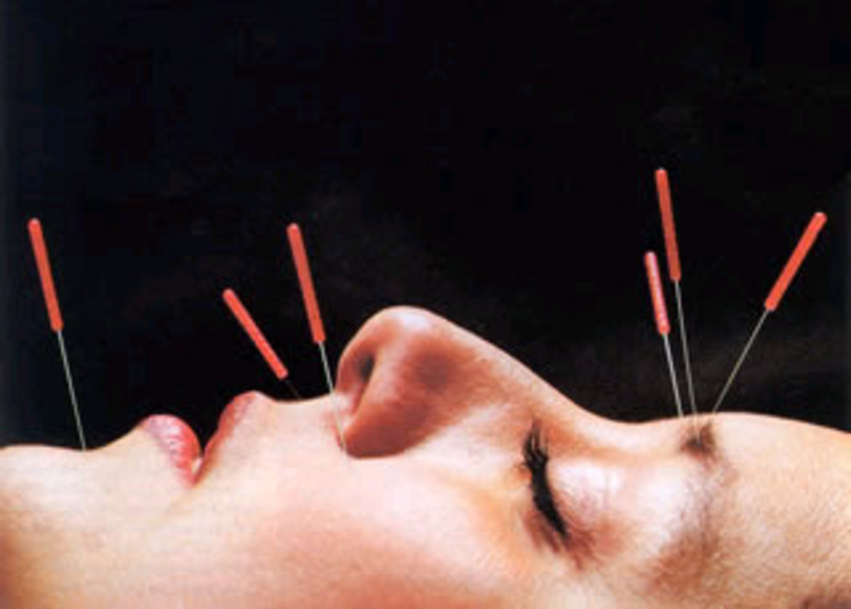 Treating GAD with acupuncture