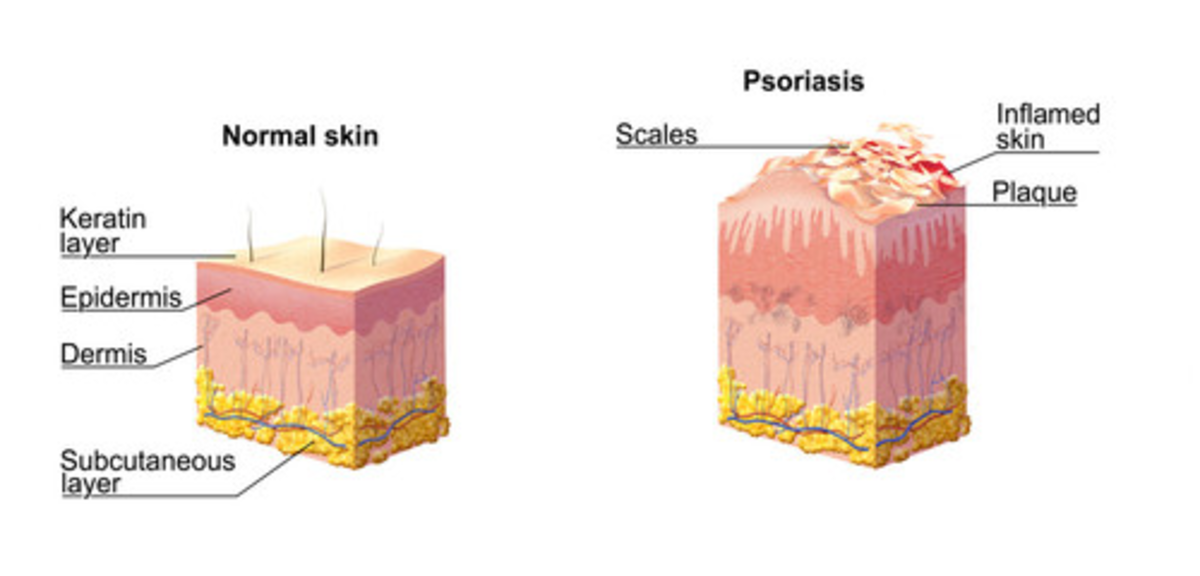 The Buildup of Skin Cells Leading to Psoriasis