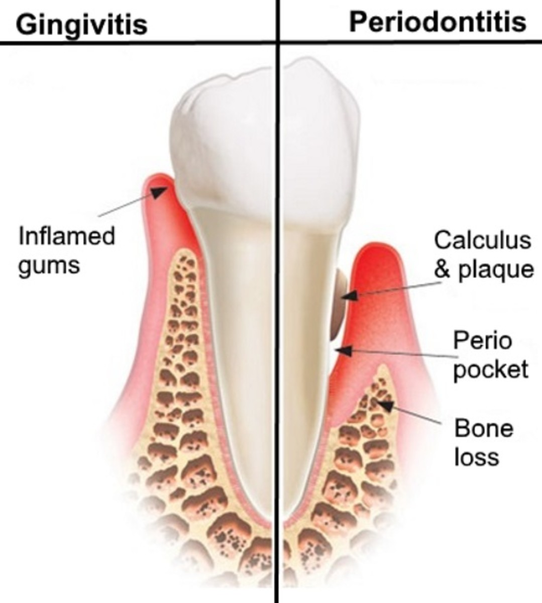 When left untreated, gingivitis often progresses to periodontitis