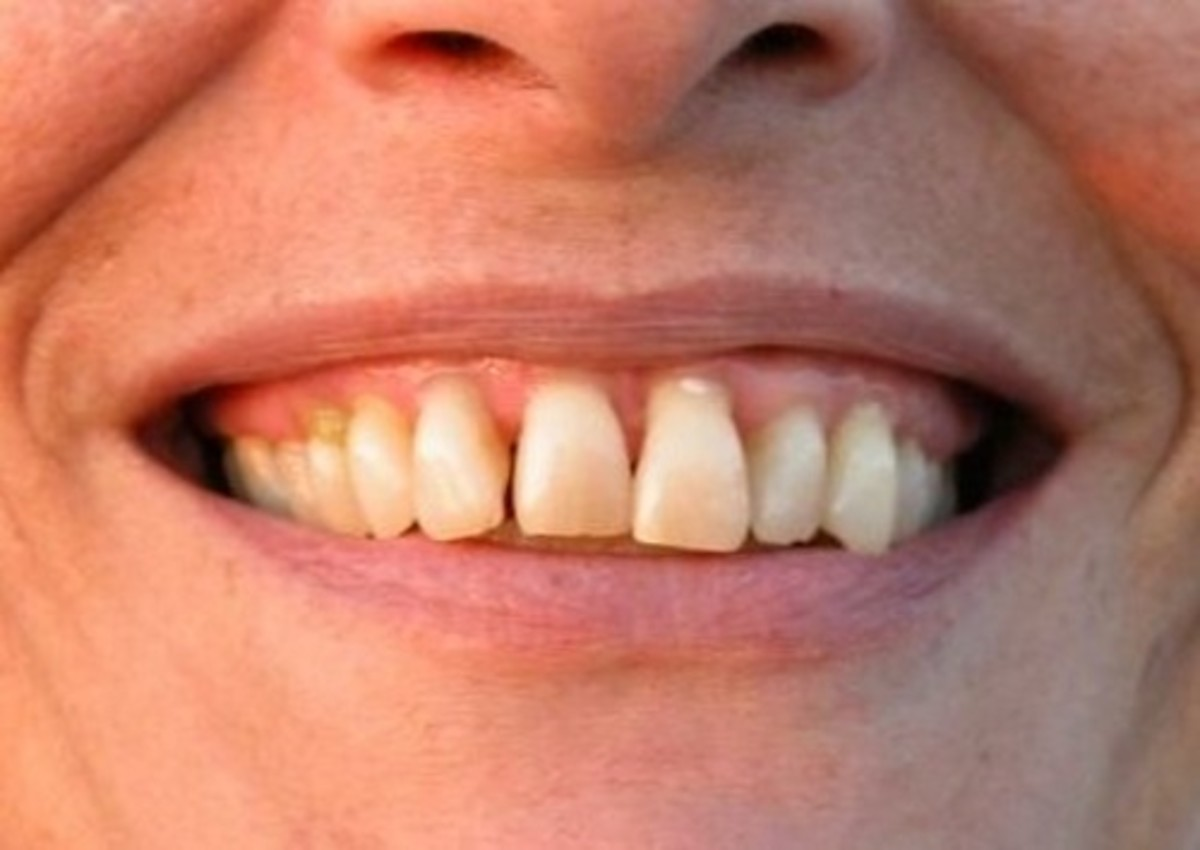 How to Manage Gum Disease Naturally