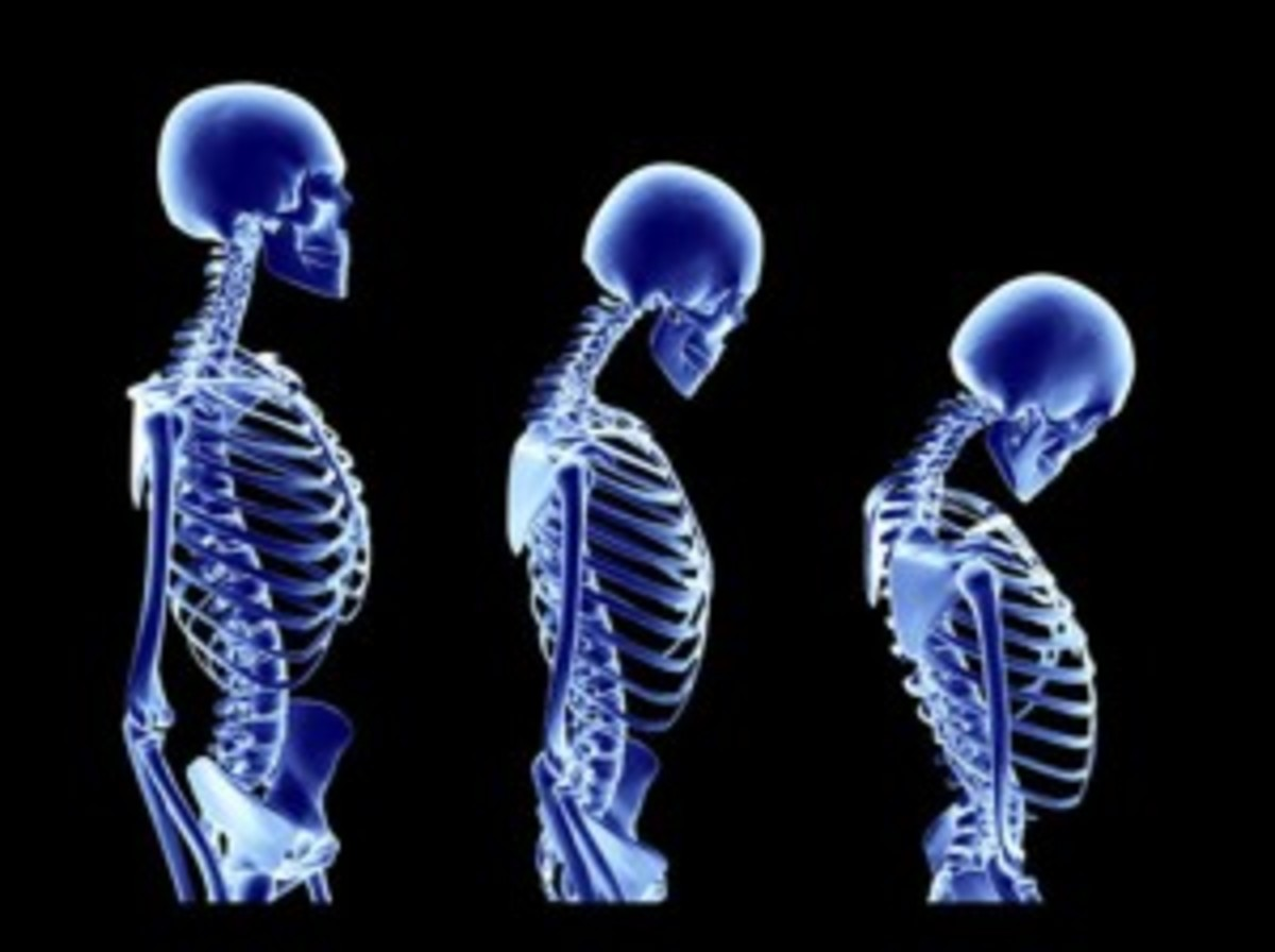 Osteoporosis can cause bone deformity and fractures.