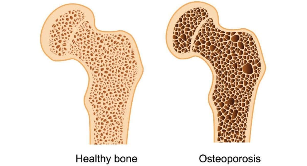 Bones become more porous and brittle with osteoporosis.