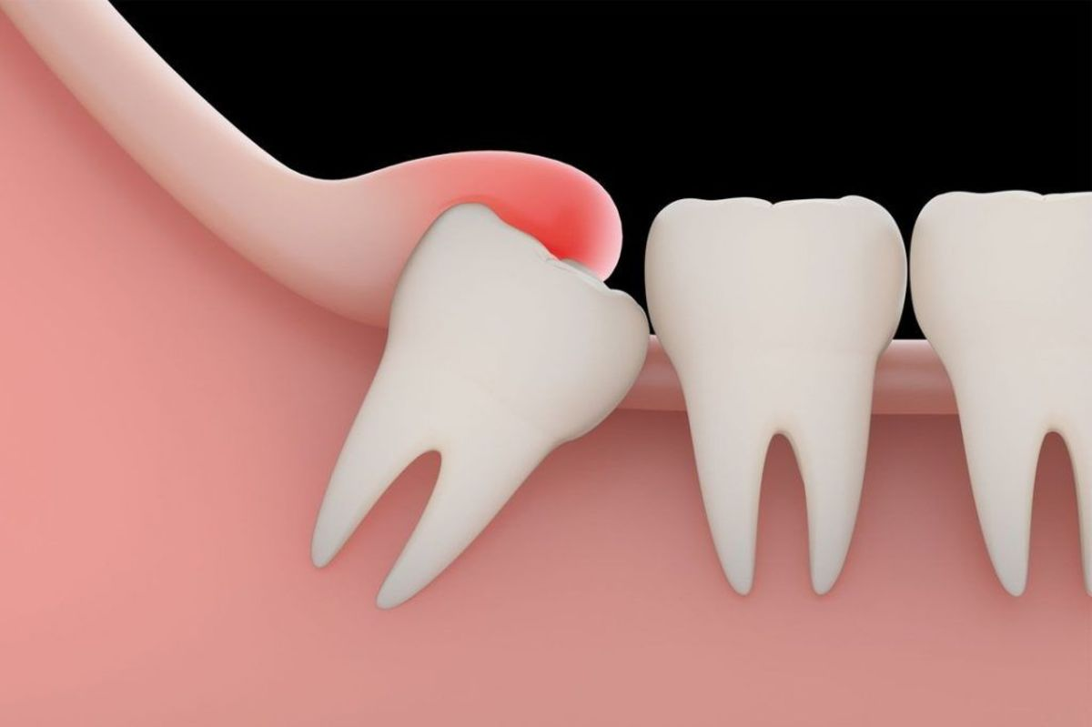 Clove Oil: A Remedy for Dental Pain