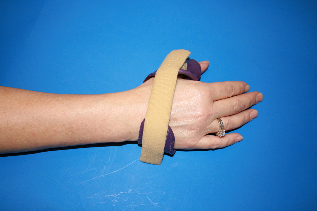 Hand-based thumb splint for wear in activities as needed.