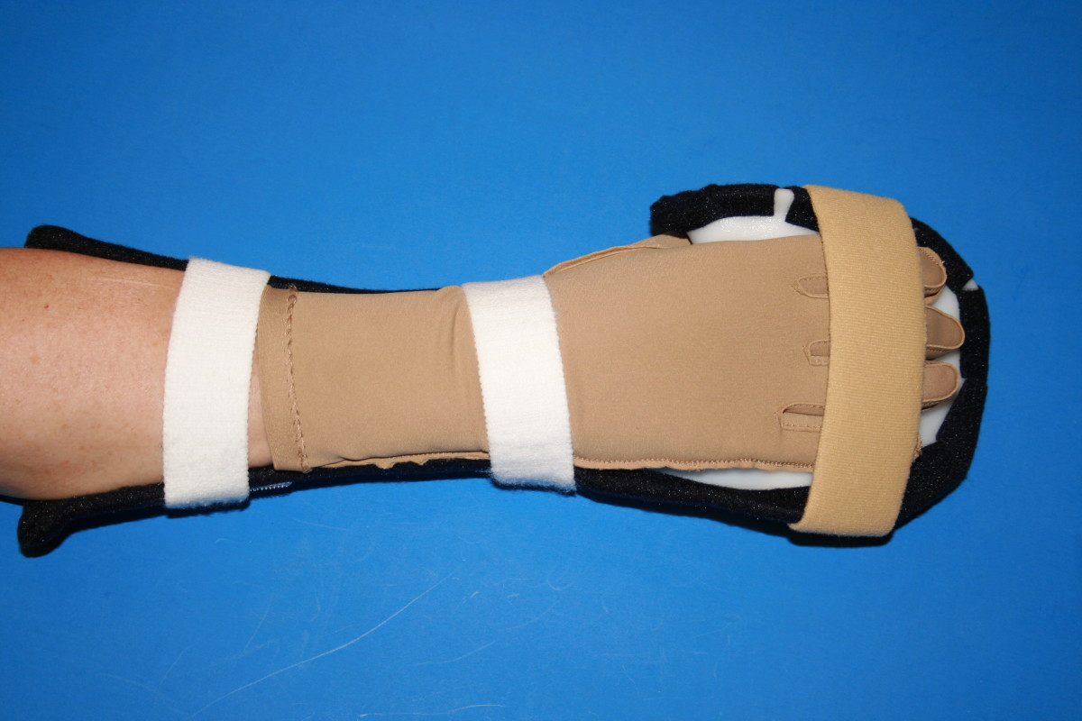 Custom made resting hand splint for sleeping.