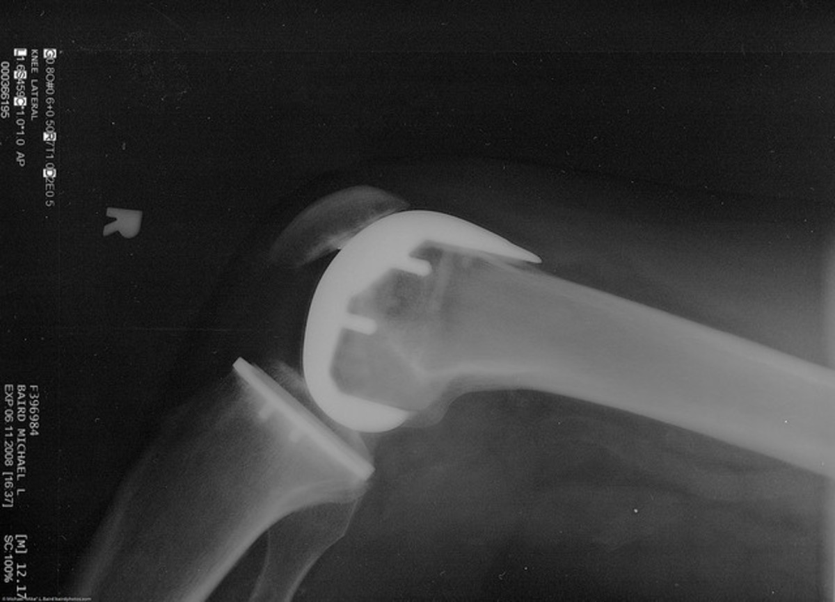 Arthritis of the knee is very common.  X-ray showing partial knee replacement.