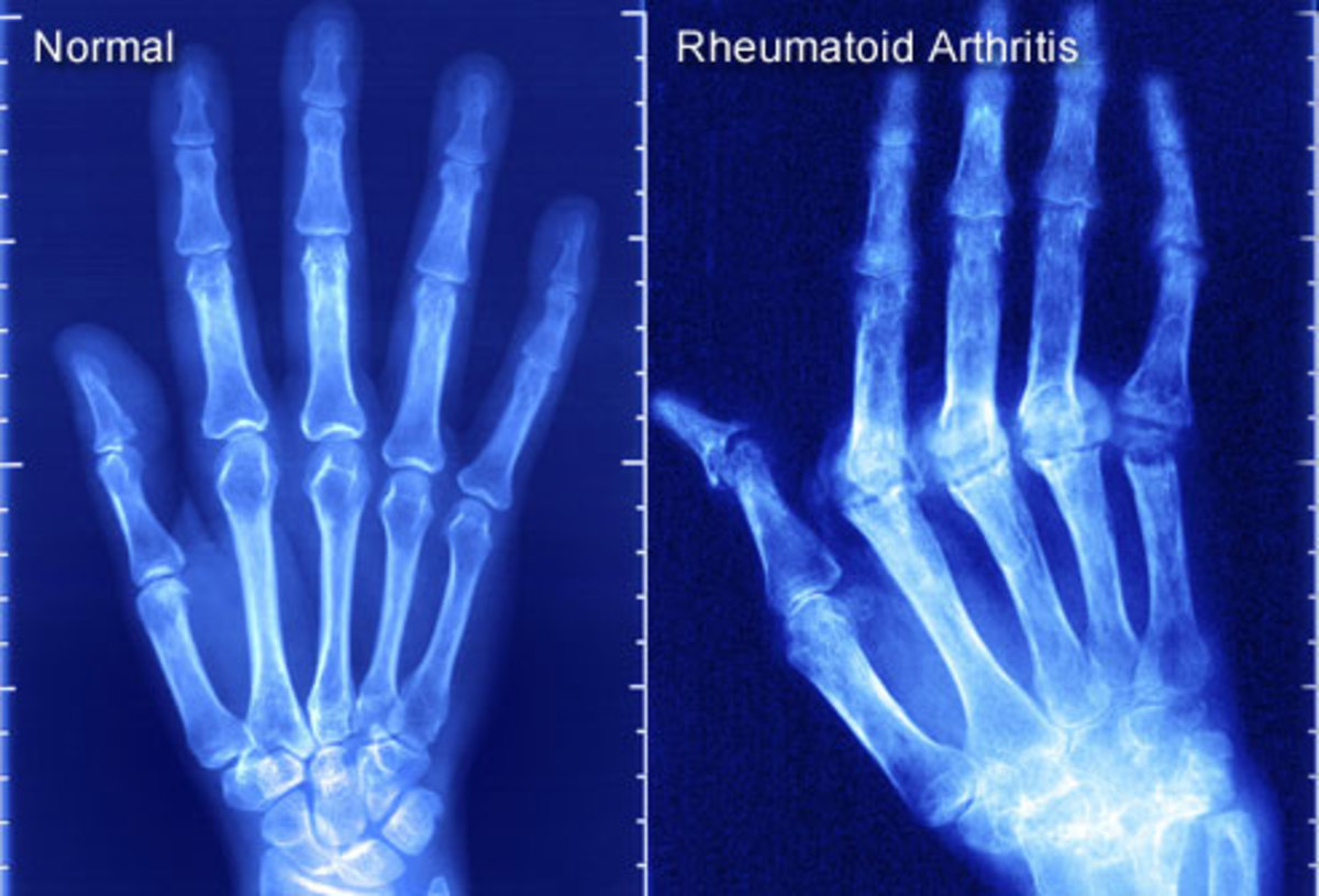 Xray of healthy hand and one with RA