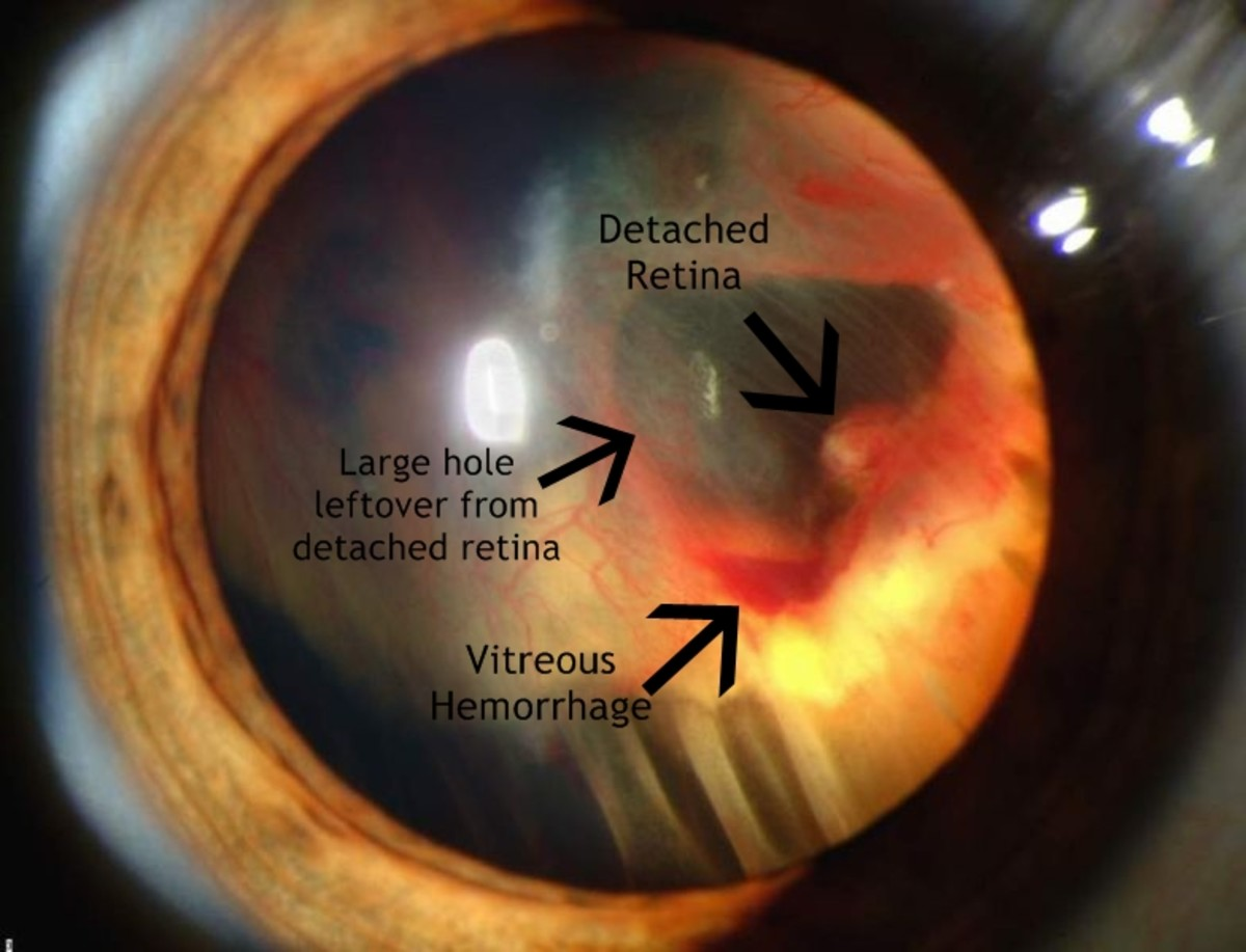 A horse-shoe tear that led to a retinal detachment and hemorrhage.