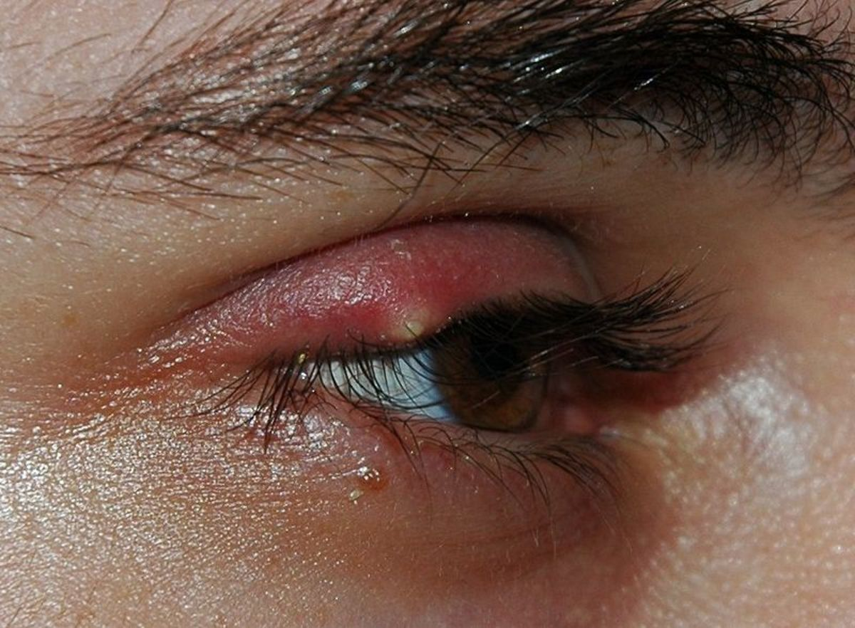 Both blepharitis and meibomian gland dysfunction can lead to styes and hordeolums.