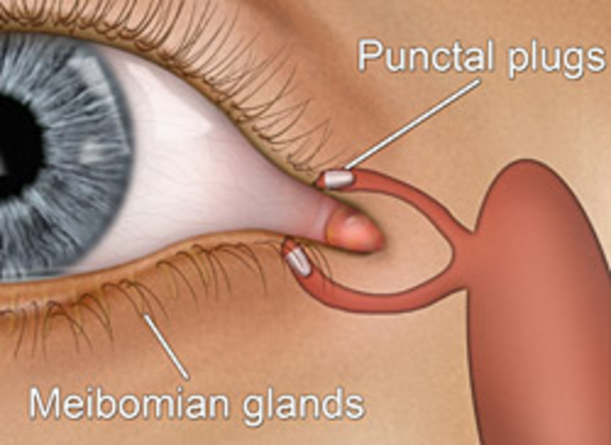 Punctal plugs fit inside the puncta and prevent tears from escaping the eye too quickly.