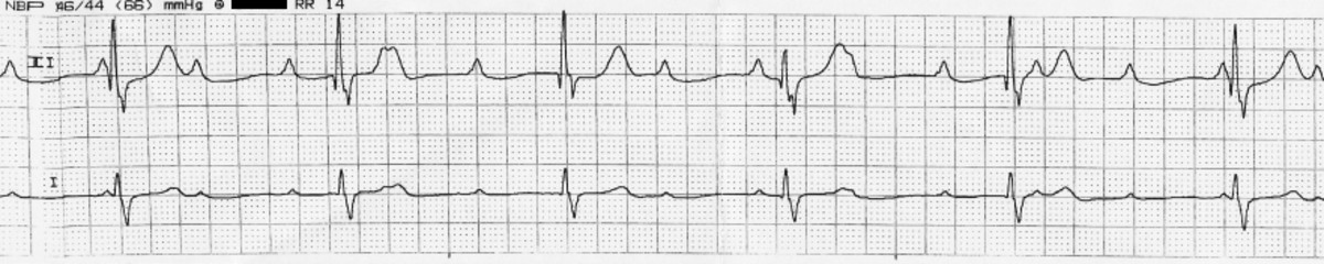 effects-of-anesthesia-on-the-heart