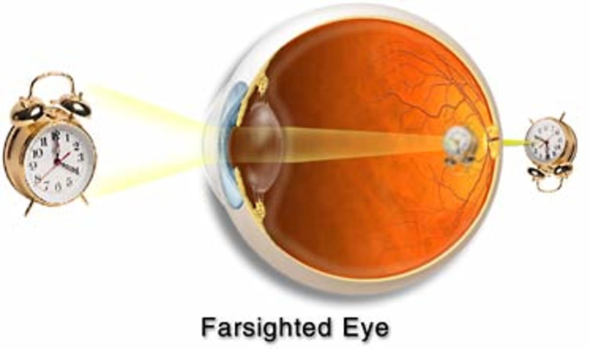The farsighted eye. Note the image falls behind the retina.