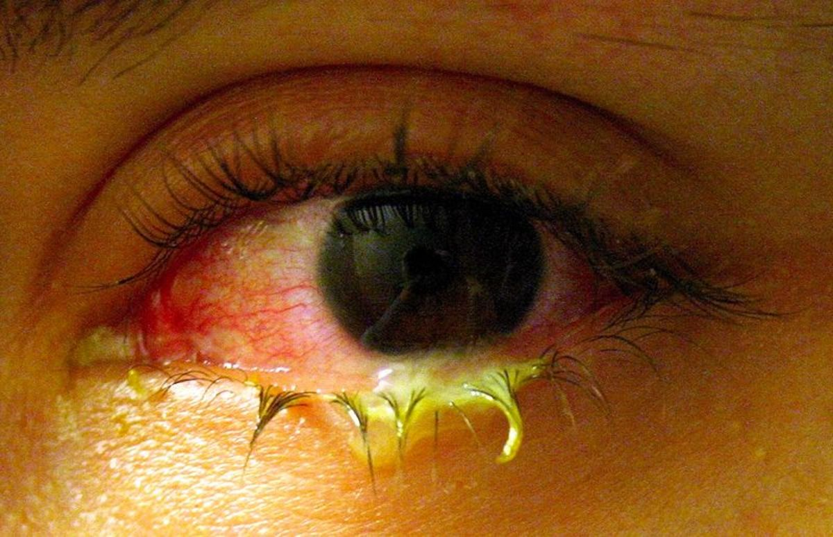 Bacterial conjunctivitis with purulent discharge