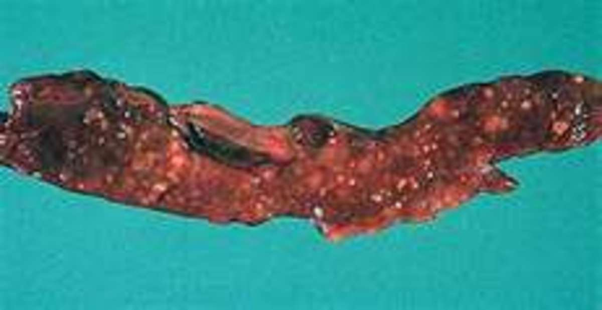 Pancreas after autolysis and putrefaction have occurred.