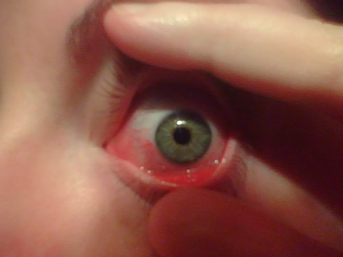 Allergic conjunctivitis is typically a red, itchy, sometimes burning eye.