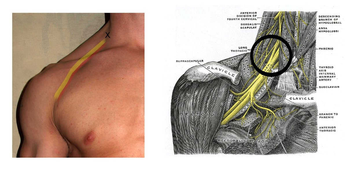 Interscalene nerve blocks are often used for shoulder operations to help with pain relief after surgery. The injection site is in the neck itself, rather than the shoulder.